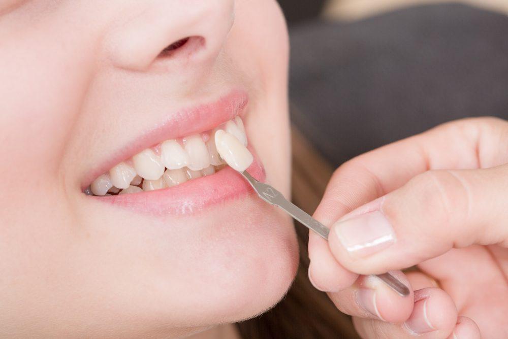 Mengenal Veneer Teknik Memutihkan Gigi Secara Instan